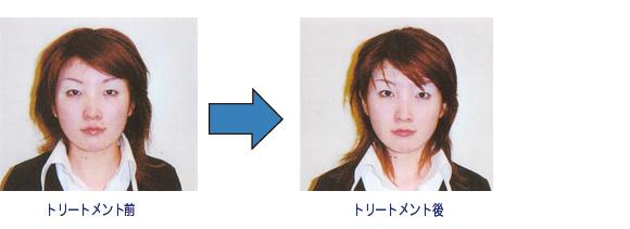 メディカル小顔術コース