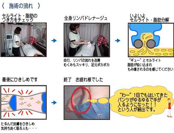 みゆ-ボディリメイク 施術の流れ